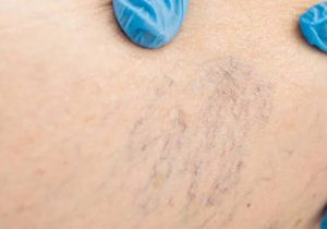 Varicose Veins Treatment Sydney