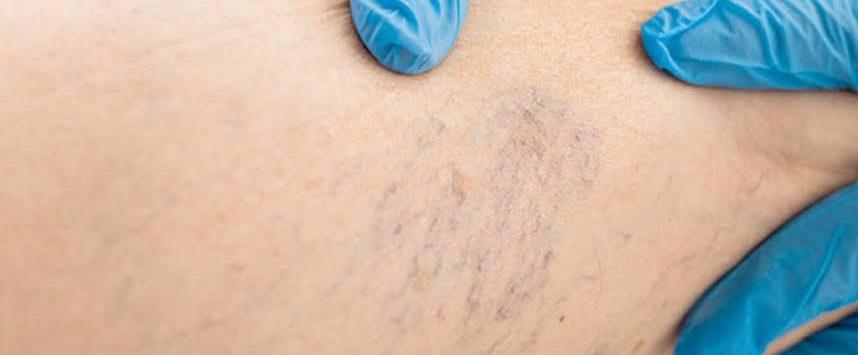 Varicose Veins Treatment Sydney